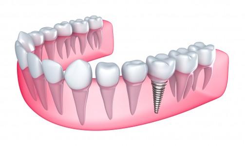 implante3